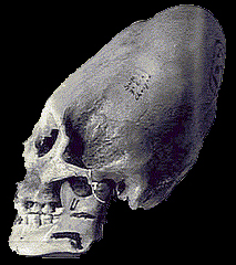 image of an elongated skull possibly Nephilim
